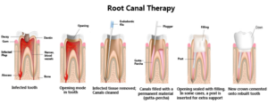 ROOT CANAL - sk smile dental clinic airoli