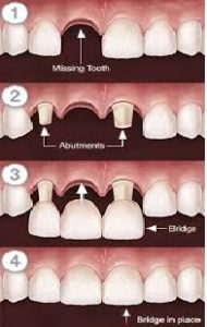 bridge - sk smile dental clinic airoli
