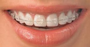 ceramic braces - sk smile dental clinic airoli