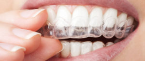 aligners - sk smile dental clinic airoli
