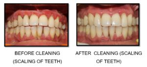tooth cleaning - sk smile dental clinic airoli