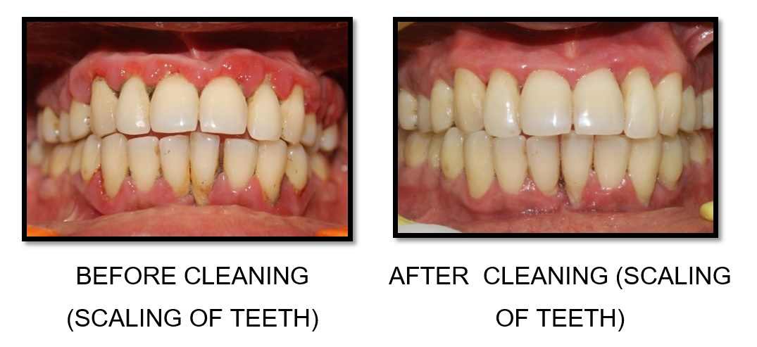 Teeth Cleaning Scaling And Polishing Sk Smile Dental