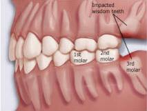 wisdom tooth - sk smile dental clinic airoli